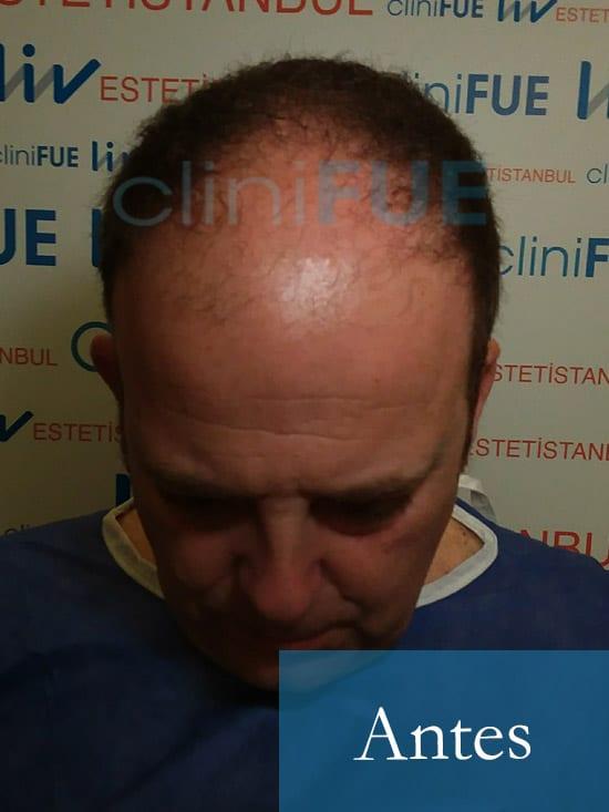 Julian 45 años Cordoba trasplante capilar turquia Antes 4