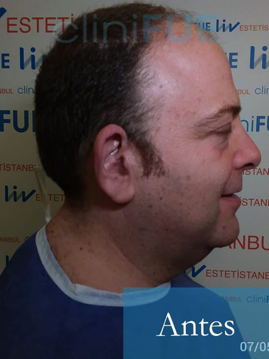 Julian 45 años Cordoba trasplante capilar turquia Antes 1