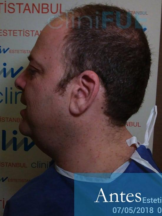 Julian 45 años Cordoba trasplante capilar turquia Antes 6
