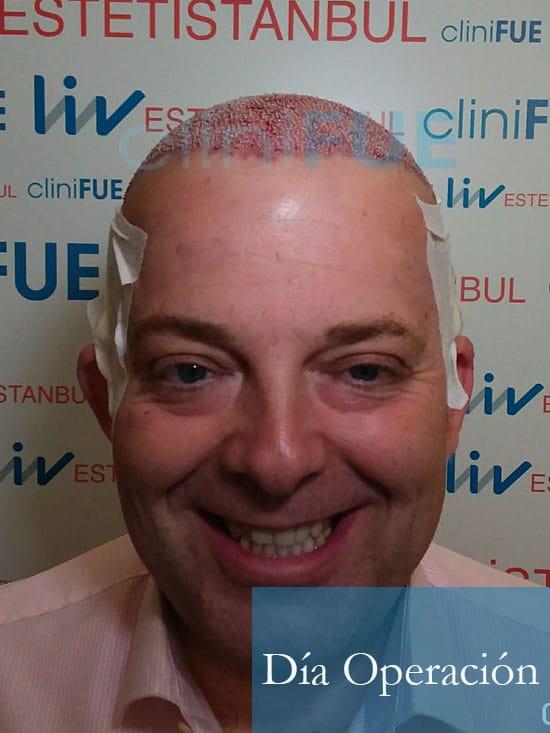 Julian 45 años Cordoba trasplante capilar turquia Dia Operacion 3