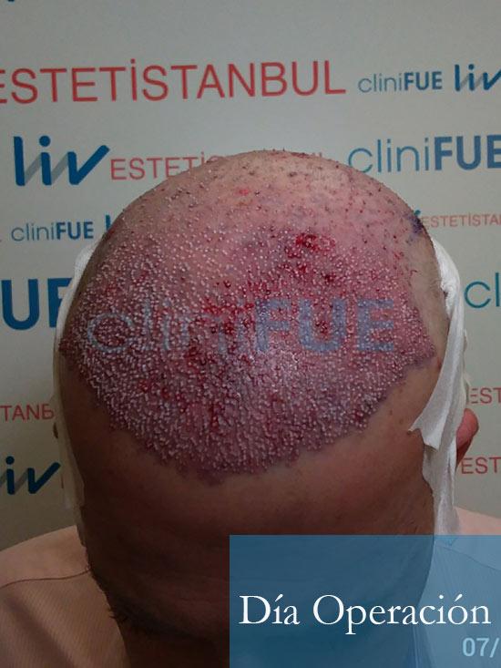 Julian 45 años Cordoba trasplante capilar turquia Dia Operacion 4