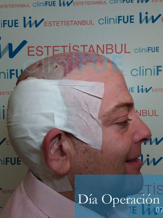 Julian 45 años Cordoba trasplante capilar turquia Dia Operacion 5