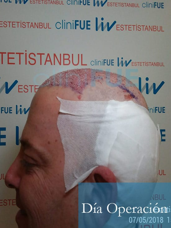 Julian 45 años Cordoba trasplante capilar turquia Dia Operacion 6