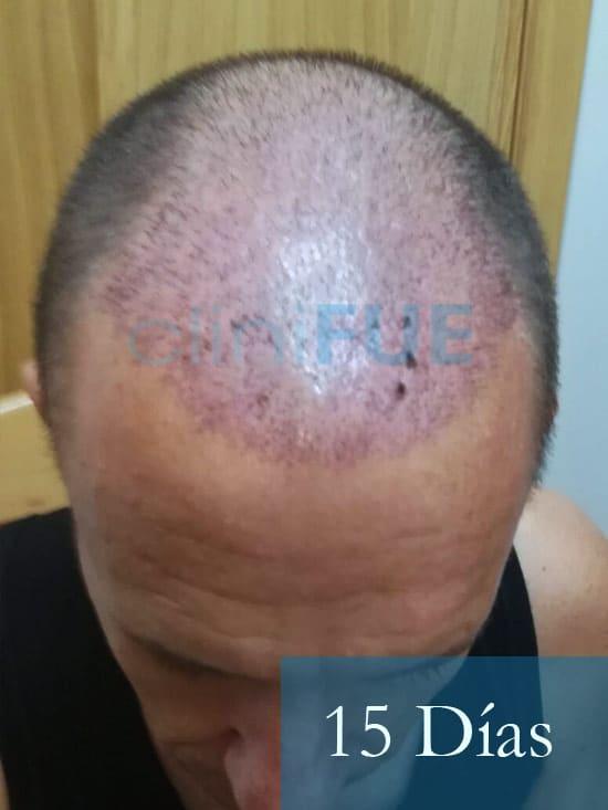 Manolo-trasplante-capilar-15-dias-2