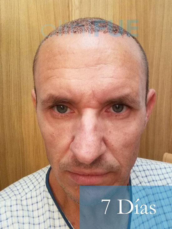 Manolo-trasplante-capilar-7-dias-