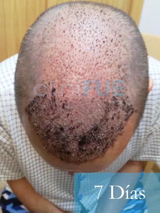 Manolo-trasplante-capilar-7-dias- 3