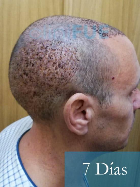 Manolo-trasplante-capilar-7-dias- 4