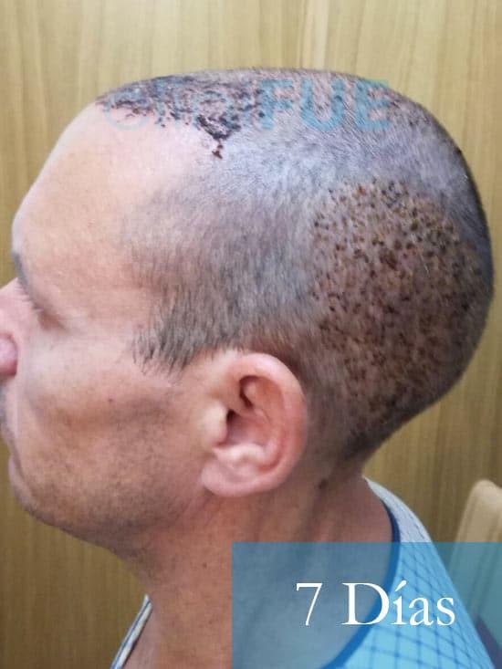 Manolo-trasplante-capilar-7-dias-5