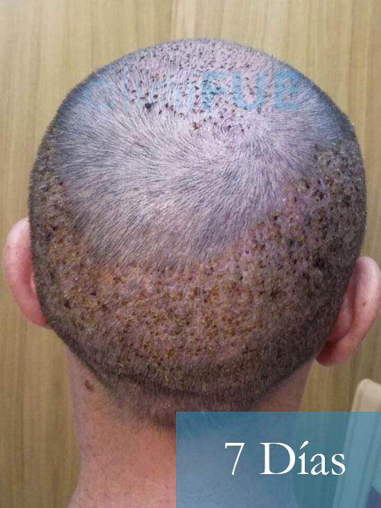 Manolo-trasplante-capilar-7-dias-6