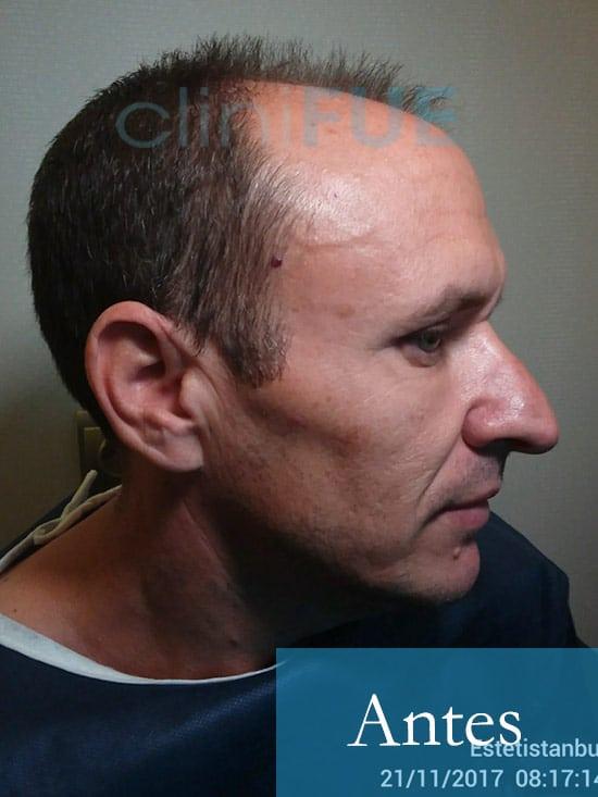 Manolo trasplante capilar Antes día operación 3