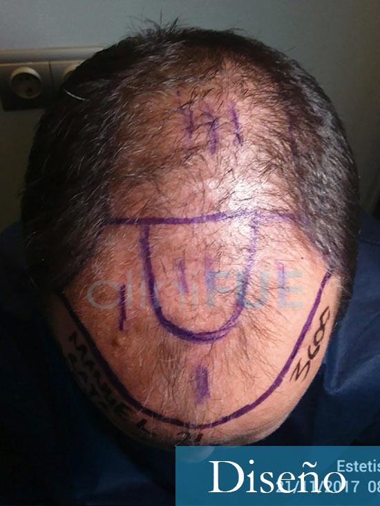 Manolo trasplante capilar Antes día operación diseño 2