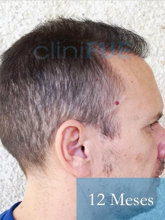 Manuel trasplante capilar 12 meses 3