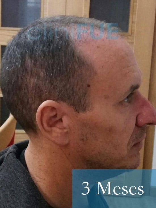 Manuel trasplante capilar 3 meses 4
