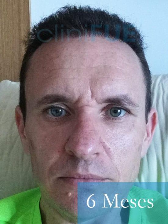 Manuel trasplante capilar 6 meses