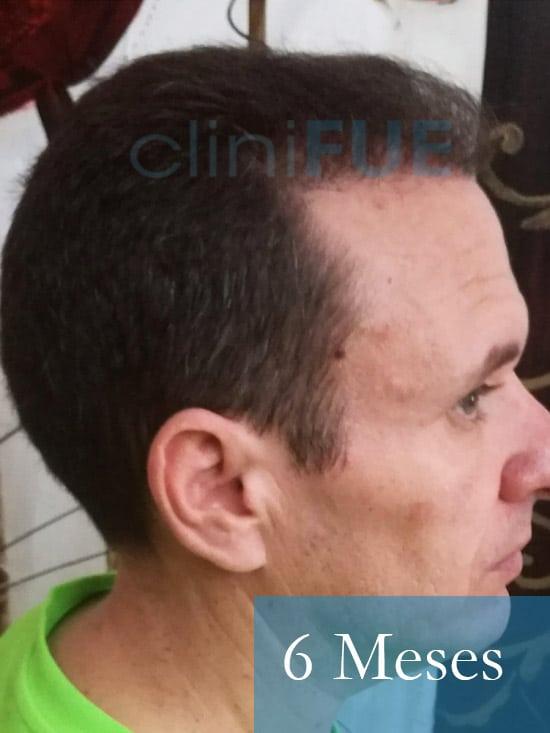 Manuel trasplante capilar 6 meses 4