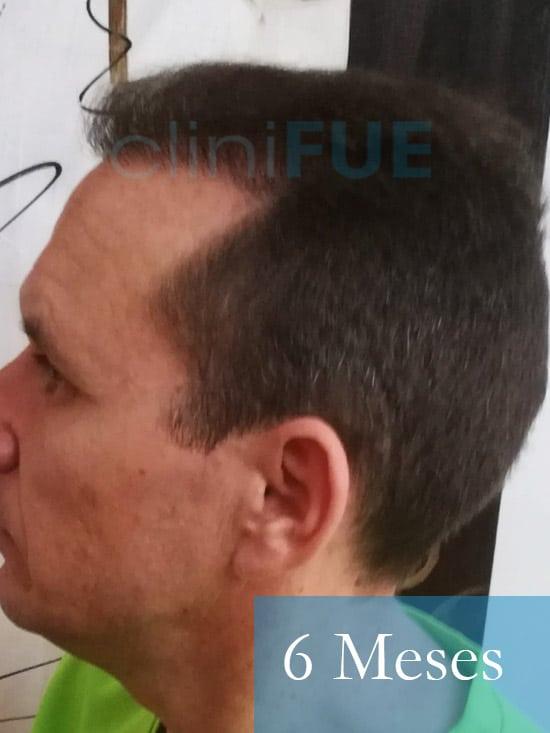 Manuel trasplante capilar 6 meses 5