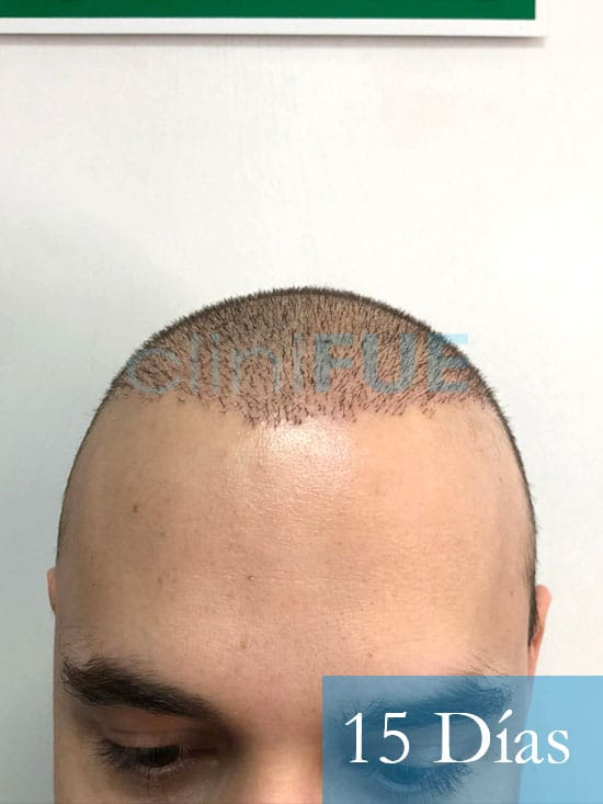 Martin 28 años Murcia trasplante capilar turquia 15 dias