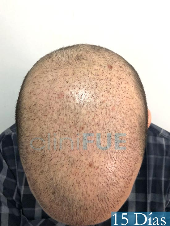 Martin 28 años Murcia trasplante capilar turquia 15 dias 2