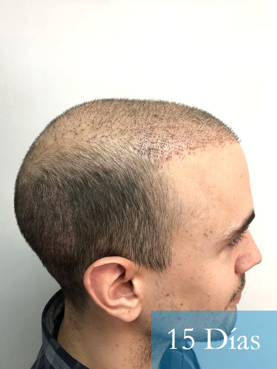 Martin 28 años Murcia trasplante capilar turquia 15 dias 3