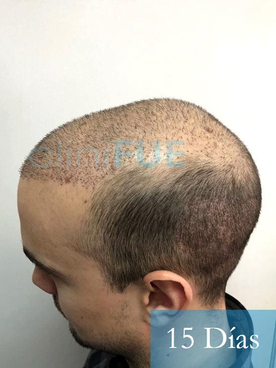 Martin 28 años Murcia trasplante capilar turquia 15 dias 4