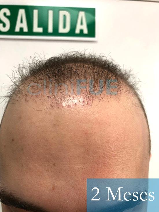 Martin 28 años Murcia trasplante capilar turquia 2 meses