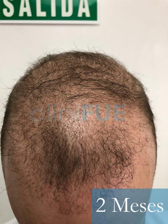 Martin 28 años Murcia trasplante capilar turquia 2 meses 2