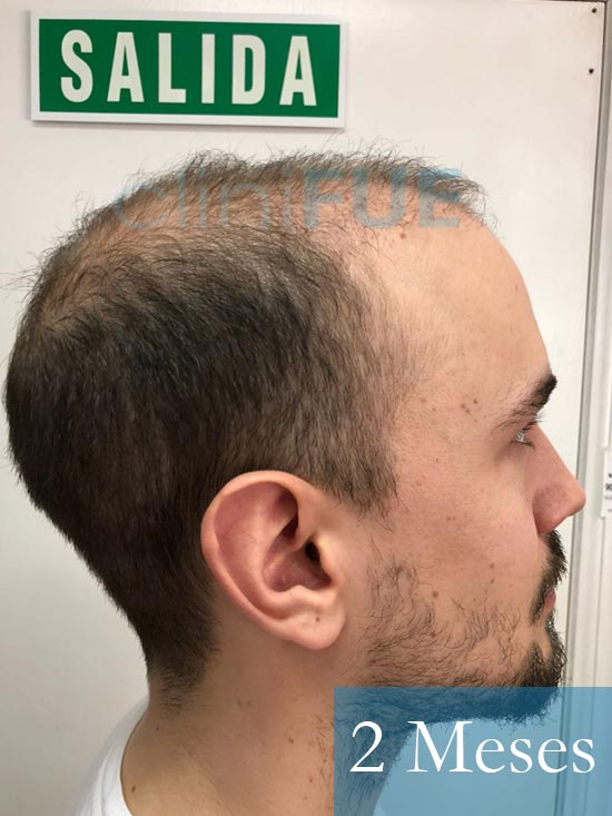 Martin 28 años Murcia trasplante capilar turquia 2 meses 4