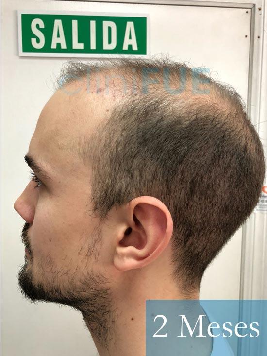 Martin 28 años Murcia trasplante capilar turquia 2 meses 5