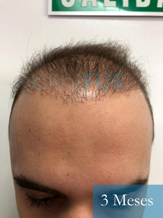 Martin 28 años Murcia trasplante capilar turquia 3 meses