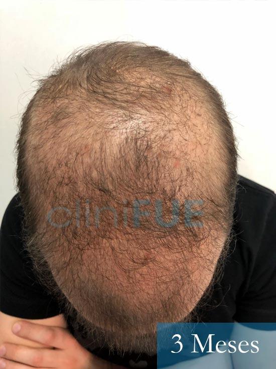 Martin 28 años Murcia trasplante capilar turquia 3 meses 2