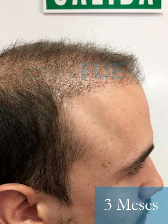 Martin 28 años Murcia trasplante capilar turquia 3 meses 3