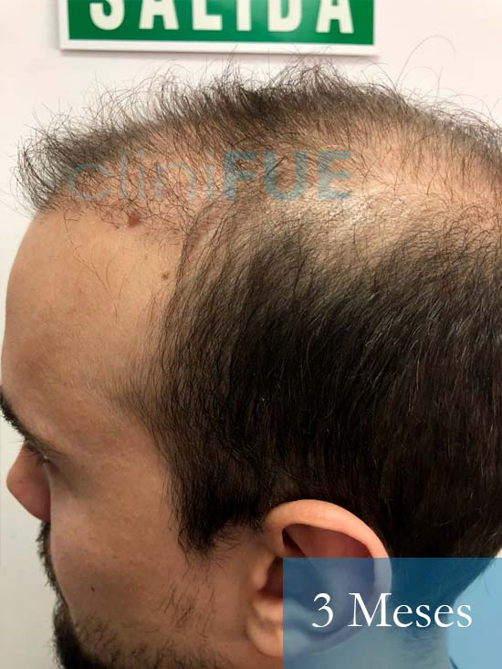 Martin 28 años Murcia trasplante capilar turquia 3 meses 4
