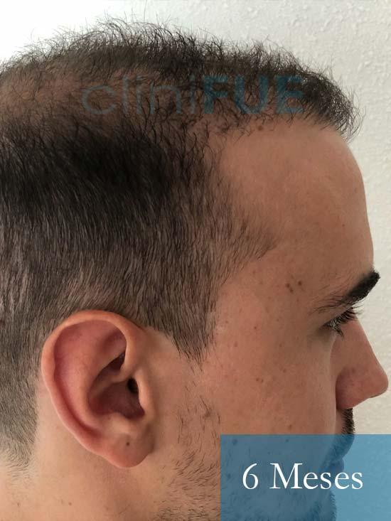 Martin 28 años Murcia trasplante capilar turquia 6 meses 3