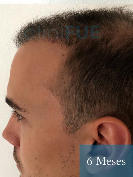 Martin 28 años Murcia trasplante capilar turquia 6 meses 4