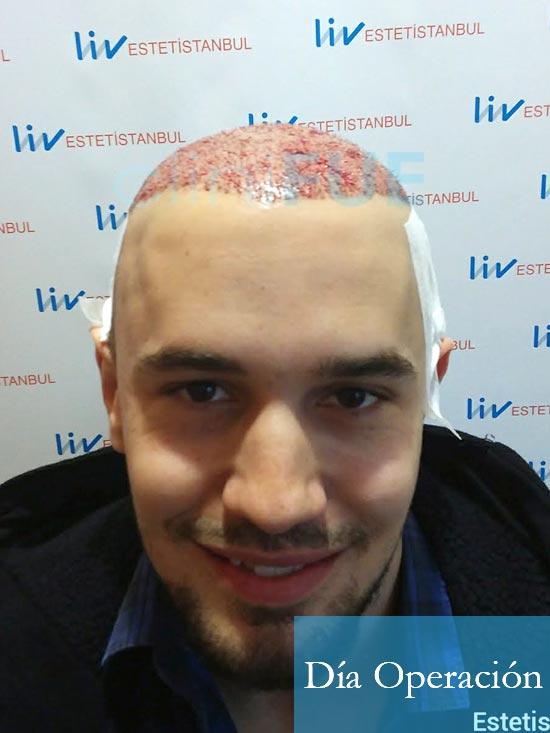 Martin 28 años Murcia trasplante capilar turquia diseno 3