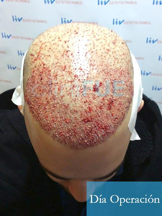 Martin 28 años Murcia trasplante capilar turquia diseno 4