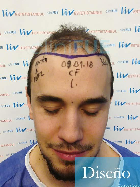 Martin 28 años Murcia trasplante capilar turquia diseno