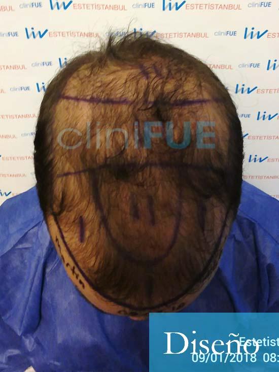 Martin 28 años Murcia trasplante capilar turquia diseno 2
