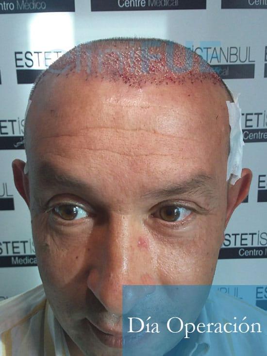 Miguel Angel 47 Valladolid injerto capilar turquia dia operacion