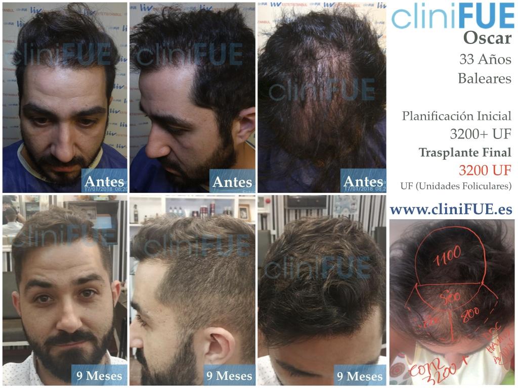 Oscar 33 anos trasplante turquia