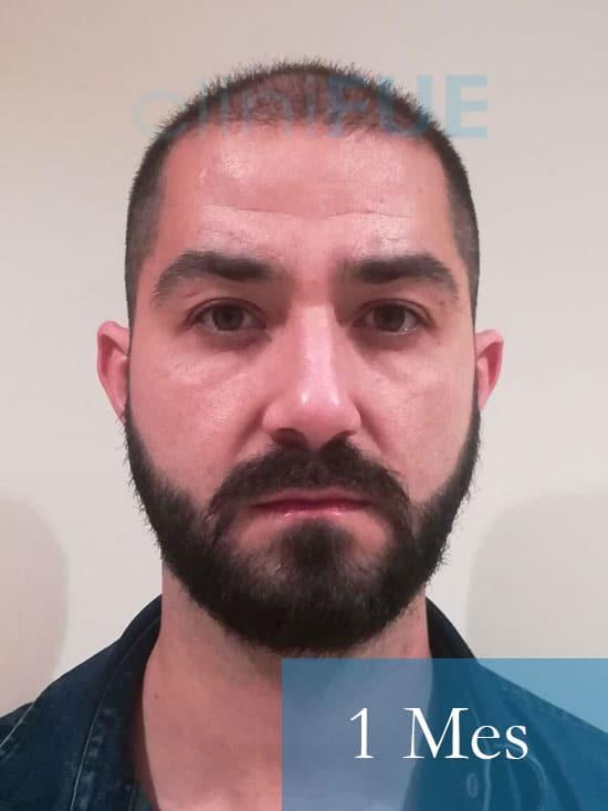 Oscar 33 anos trasplante turquia 1 mes