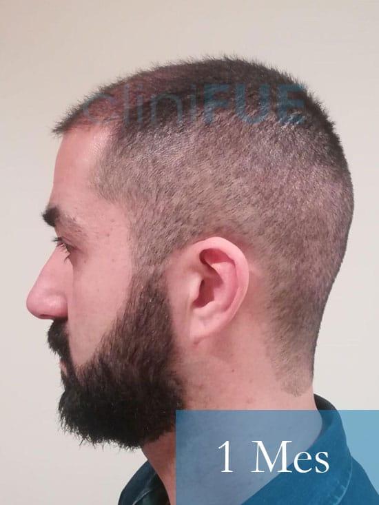 Oscar 33 anos trasplante turquia 1 mes 4