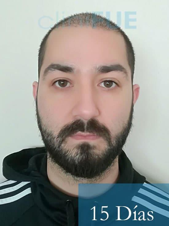Oscar 33 anos trasplante turquia 15 dias 1