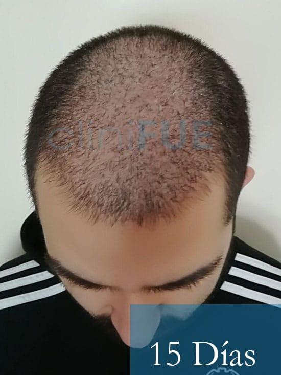 Oscar 33 anos trasplante turquia 15 dias 2