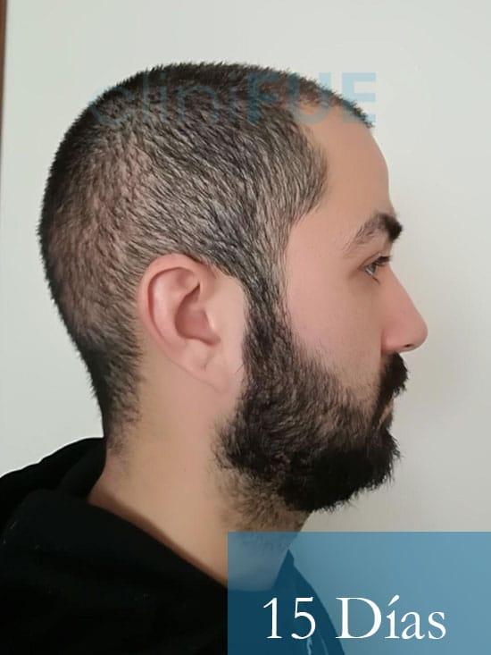 Oscar 33 anos trasplante turquia 15 dias 3