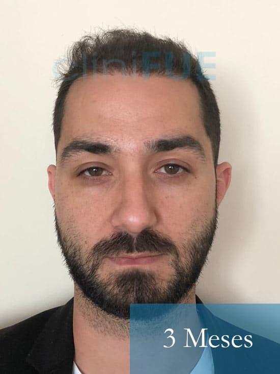 Oscar 33 anos trasplante turquia 3 meses