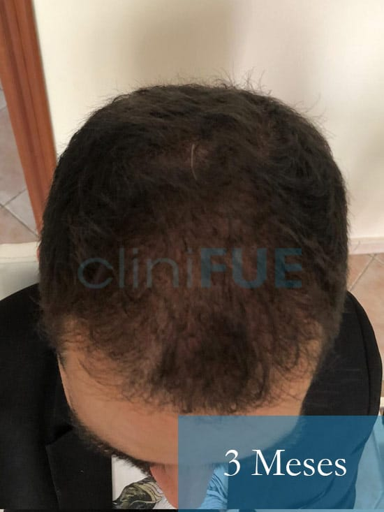 Oscar 33 anos trasplante turquia 3 meses 3