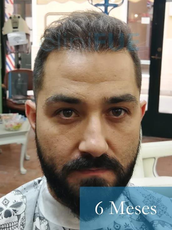 Oscar 33 anos trasplante turquia 6 meses