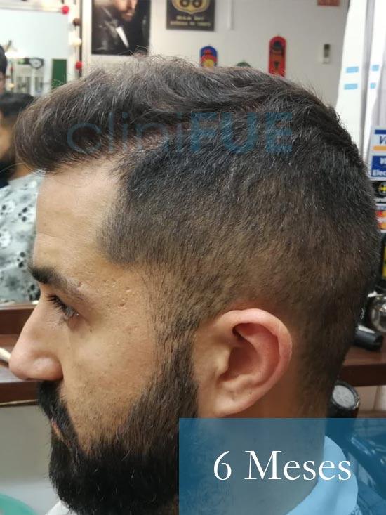 Oscar 33 anos trasplante turquia 6 meses 5