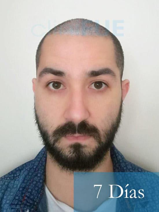 Oscar 33 anos trasplante turquia 7 dias 1